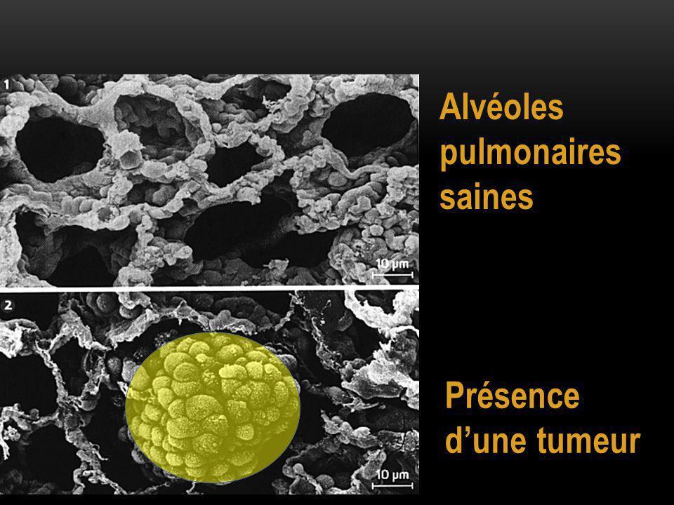 Alvéoles pulmonaires saines Présence d'une tumeur