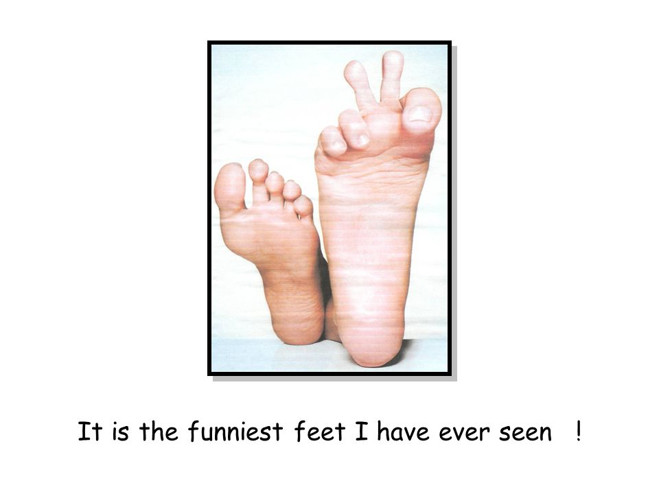 It is the funniest feet I have ever seen !