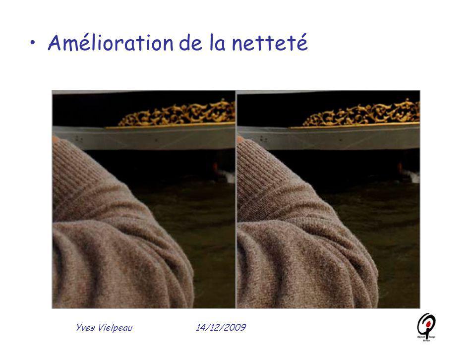 14/12/2009Yves Vielpeau Amélioration de la netteté