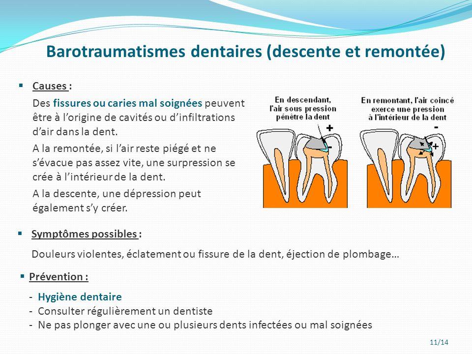 11/14 Barotraumatismes dentaires (descente et remontée)  Causes : Des fissures ou caries mal soignées peuvent être à l'origine de cavités ou d'infilt