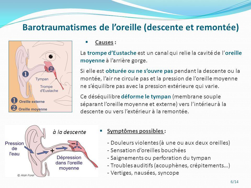 7/14  avant la plongée : - Ne jamais plonger enrhumé ou en cas d'infection ORL - Ne pas utiliser de vasodilatateur (aérosol nasal) avant une plongée - Visite médicale préventive  à la descente : - Pratiquer une manœuvre de compensation telle que Vasalva (ou autre) régulièrement et avant toute gène, pour ouvrir la trompe d'eustache et équilibrer les pressions - Cesser la descente en cas de gêne et ne pas forcer (remonter de quelques mètres, informer le moniteur, attendre et redescendre lentement si la gêne est passée) Prévention des barotraumatismes de l'oreille  à la remontée : -Généralement, les pressions s'équilibrent d'elles même à la remontée sans manœuvre de compensation.