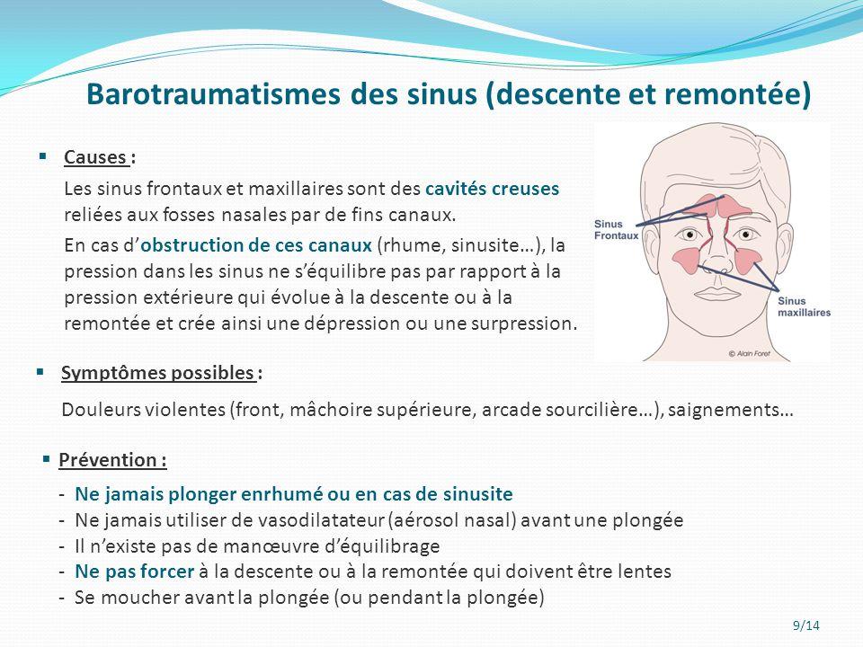 9/14 Barotraumatismes des sinus (descente et remontée)  Causes : Les sinus frontaux et maxillaires sont des cavités creuses reliées aux fosses nasale