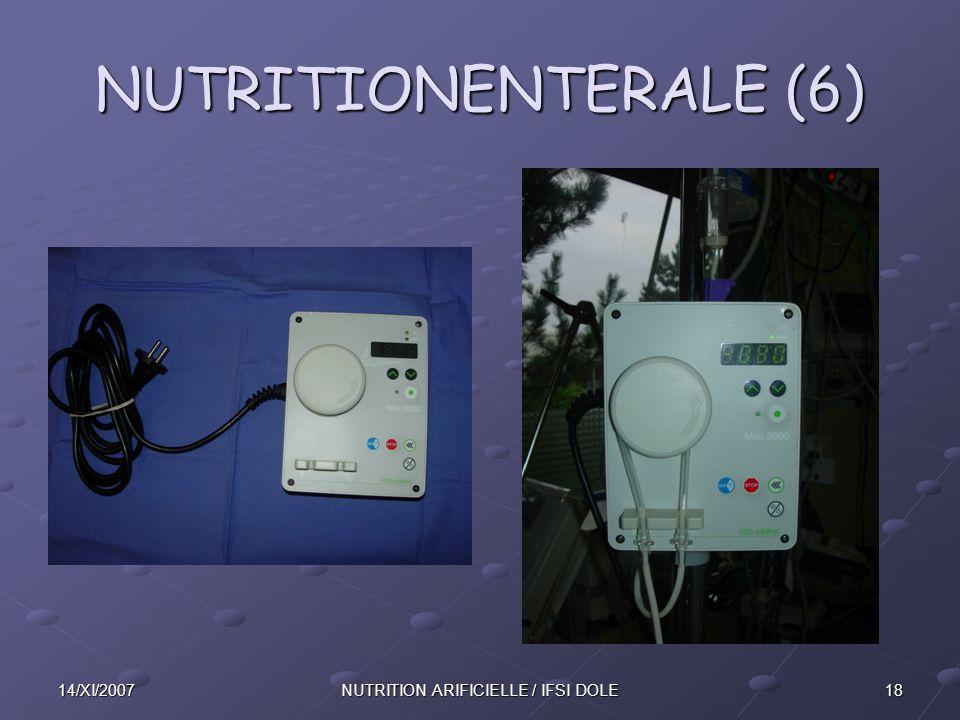 1814/XI/2007NUTRITION ARIFICIELLE / IFSI DOLE NUTRITIONENTERALE (6)