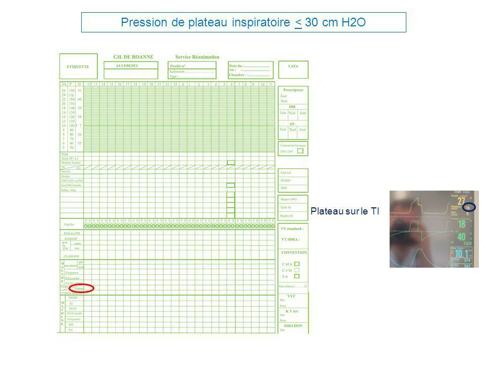 Pression de plateau inspiratoire < 30 cm H2O Plateau sur le TI