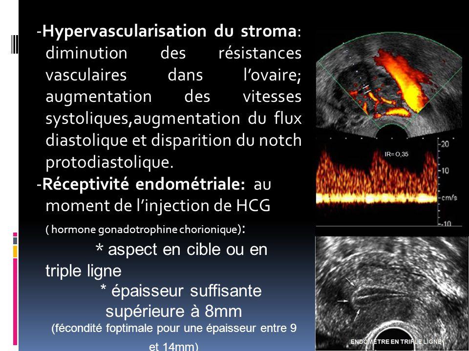 -Hypervascularisation du stroma: diminution des résistances vasculaires dans l'ovaire; augmentation des vitesses systoliques,augmentation du flux dias
