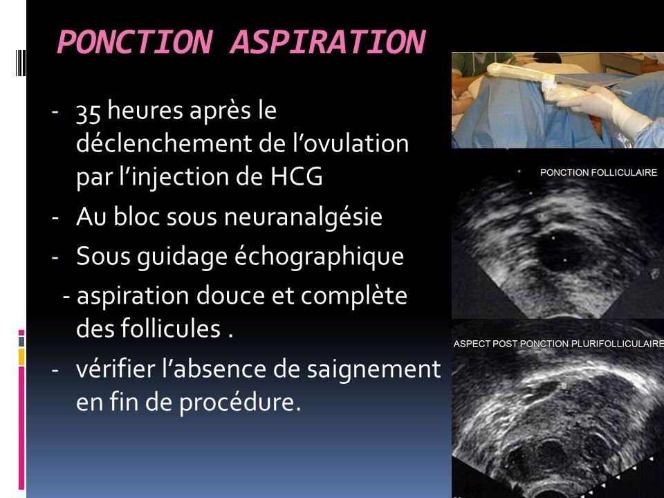 PONCTION ASPIRATION - 35 heures après le déclenchement de l'ovulation par l'injection de HCG - Au bloc sous neuranalgésie - Sous guidage échographique