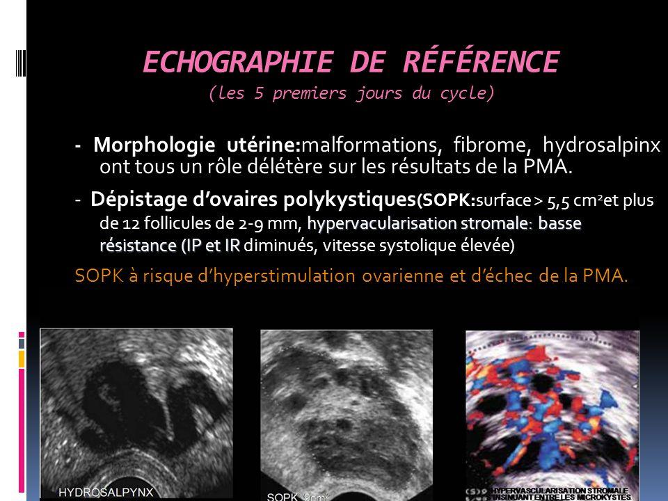 ESTIMATION RÉSERVE OVARIENNE (3 ème jour du cycle): 1/le compte des follicules antraux (CFA) de 2 à 5 mm de diamètre: taux de grossesse nul si CFA 4 2/la mesure du volume ovarien (V): longueur longitudinale x longueur antéropostérieure x longueur transverse x 0.523:taux de grossesse bas si V<3cm 3 3/Structure du stroma ovarien: mesure de la surface de la zone du stroma et l 'étude de son échogénicité (SOPK surface du stroma >4.6cm 2 )