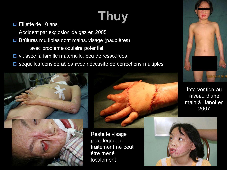3 Thuy  Fillette de 10 ans Accident par explosion de gaz en 2005  Brûlures multiples dont mains, visage (paupières) avec problème oculaire potentiel