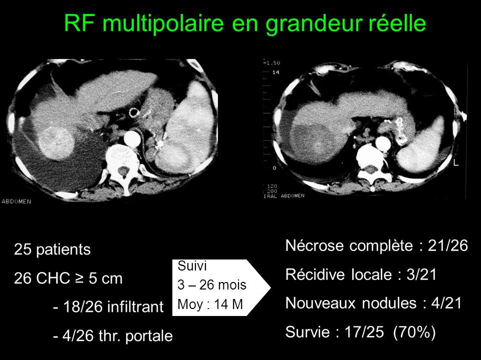 RF multipolaire en grandeur réelle 25 patients 26 CHC ≥ 5 cm - 18/26 infiltrant - 4/26 thr. portale Nécrose complète : 21/26 Récidive locale : 3/21 No