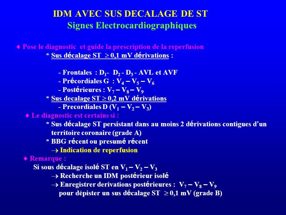 IDM AVEC SUS DECALAGE DE ST Signes Electrocardiographiques  Pose le diagnostic et guide la prescription de la reperfusion * Sus d é calage ST  0,1 m