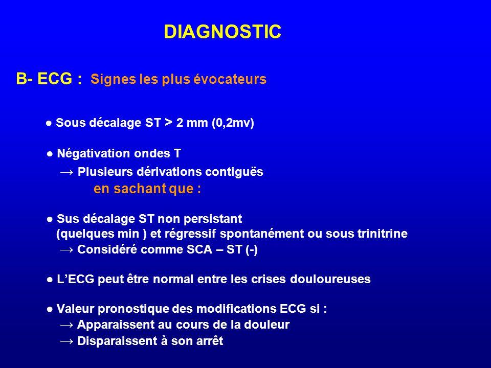DIAGNOSTIC B- ECG : Signes les plus évocateurs ● Sous décalage ST > 2 mm (0,2mv) ● Négativation ondes T → Plusieurs dérivations contiguës en sachant q
