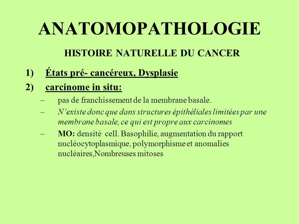 ANATOMOPATHOLOGIE HISTOIRE NATURELLE DU CANCER 1)États pré- cancéreux, Dysplasie 2)carcinome in situ: –pas de franchissement de la membrane basale. –N