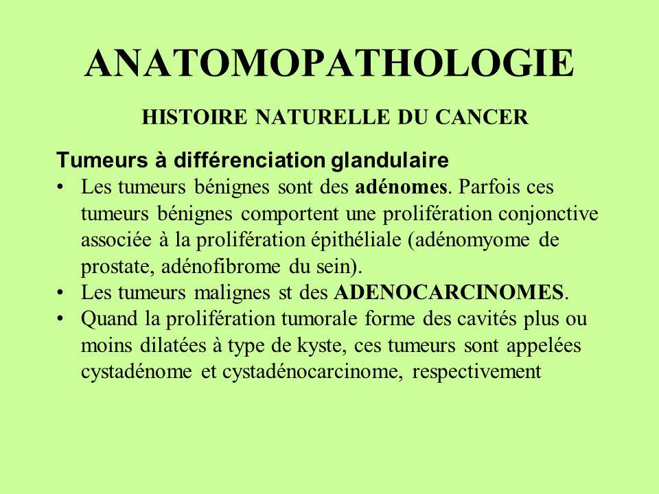 ANATOMOPATHOLOGIE HISTOIRE NATURELLE DU CANCER Tumeurs à différenciation glandulaire Les tumeurs bénignes sont des adénomes. Parfois ces tumeurs bénig