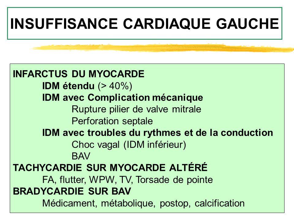 INSUFFISANCE CARDIAQUE GAUCHE INFARCTUS DU MYOCARDE IDM étendu (> 40%) IDM avec Complication mécanique Rupture pilier de valve mitrale Perforation sep