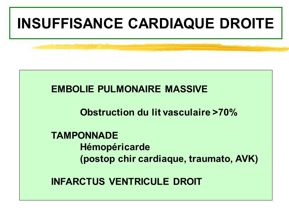INSUFFISANCE CARDIAQUE DROITE EMBOLIE PULMONAIRE MASSIVE Obstruction du lit vasculaire >70% TAMPONNADE Hémopéricarde (postop chir cardiaque, traumato,