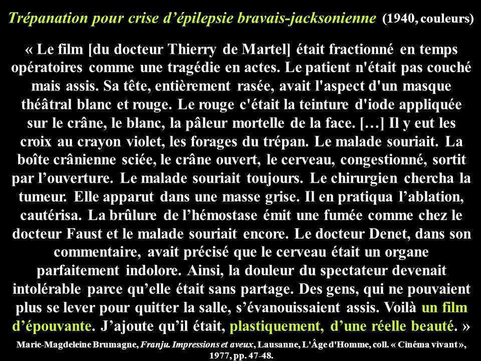 Trépanation pour crise d'épilepsie bravais-jacksonienne (1940, couleurs) « Le film [du docteur Thierry de Martel] était fractionné en temps opératoires comme une tragédie en actes.