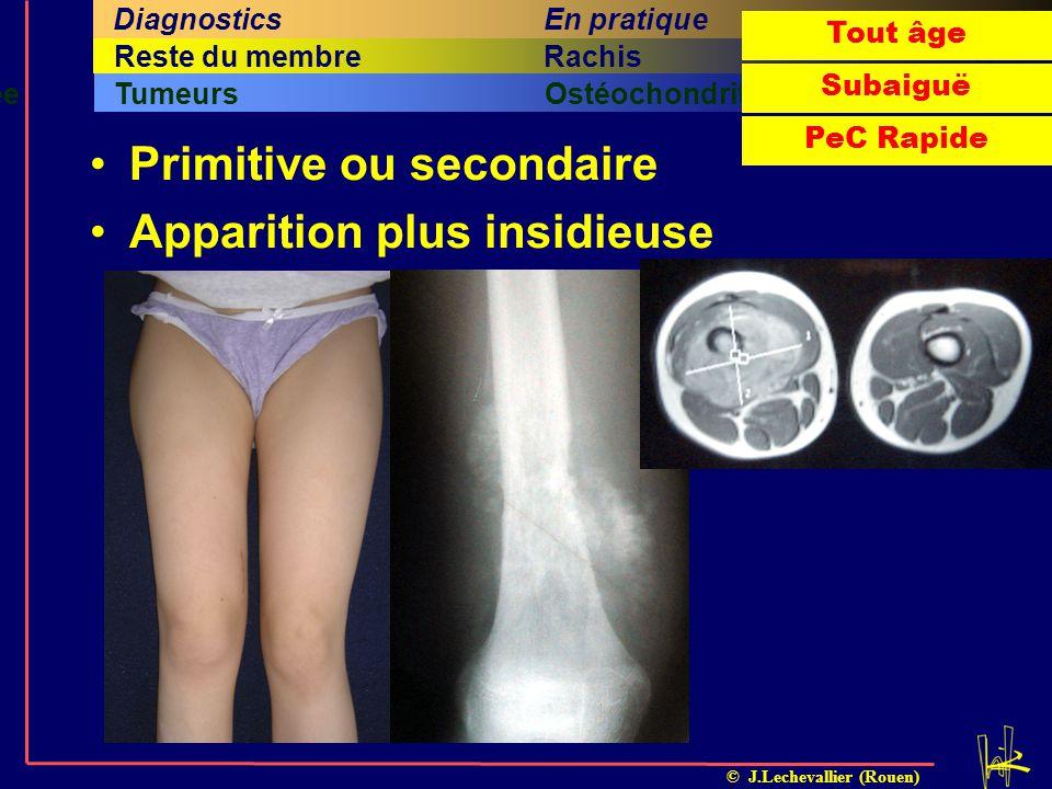 © J.Lechevallier (Rouen) Arthrite septiqueOstéomyéliteILMI Fracture sous-périostéeTumeursOstéochondrite dissécante Cinquième titreSixième titreRachisQ