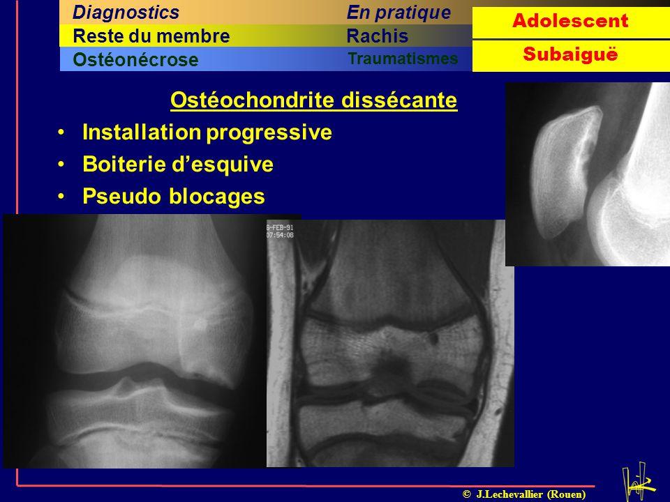 © J.Lechevallier (Rouen) Arthrite septiqueOstéomyéliteILMI TumeursOstéonécrose Traumatismes Cinquième titreSixième titreRachisQuatrième titreHancheRes