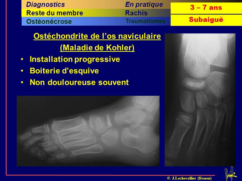 © J.Lechevallier (Rouen) Arthrite septiqueOstéomyéliteILMI Ostéonécrose Traumatismes Cinquième titreSixième titreRachisQuatrième titreHancheReste du m