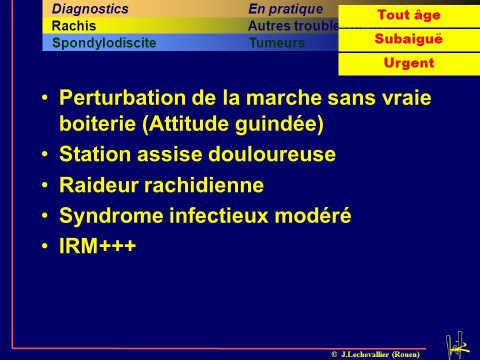 © J.Lechevallier (Rouen) SpondylodisciteTumeurs Quatrième sous-titreCinquième sous-titreSixième sous-titre Cinquième titreSixième titreRachisAutres tr