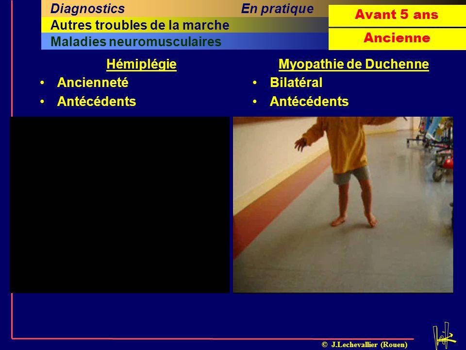 © J.Lechevallier (Rouen) Maladies neuromusculaires Quatrième sous-titreCinquième sous-titreSixième sous-titre Sixième titreRachisAutres troubles de la