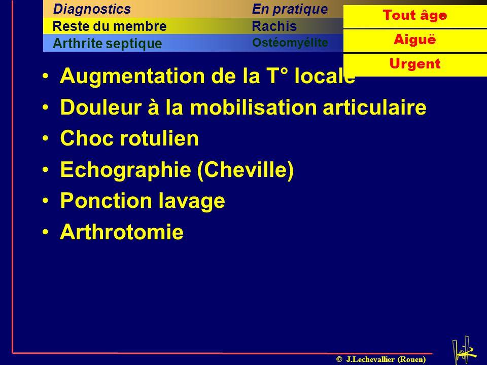 © J.Lechevallier (Rouen) Augmentation de la T° locale Douleur à la mobilisation articulaire Choc rotulien Echographie (Cheville) Ponction lavage Arthr