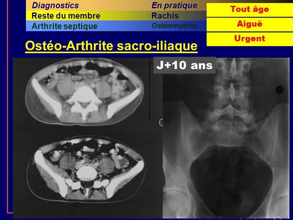 © J.Lechevallier (Rouen) En pratiqueMessages Investigations complémentaires DiagnosticsProblématiqueClinique 1.La hanche est impliquée dans moins de la moitié des boiteries 2.Une affection de hanche peut n'être révélée que par des douleurs du genou..