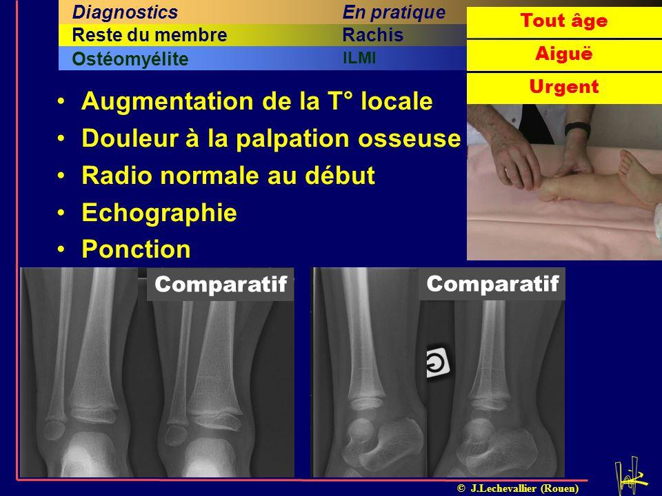 © J.Lechevallier (Rouen) Augmentation de la T° locale Douleur à la palpation osseuse Radio normale au début Echographie Ponction Arthrite septiqueOsté