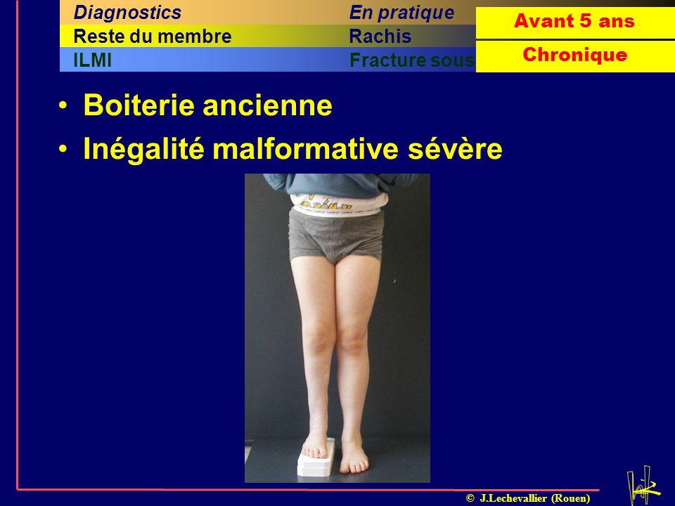 © J.Lechevallier (Rouen) Boiterie ancienne Inégalité malformative sévère Arthrite septique OstéomyéliteILMIFracture sous-périostée Cinquième sous-titr