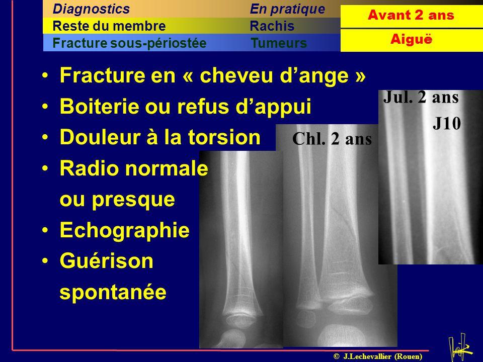 © J.Lechevallier (Rouen) Arthrite septiqueOstéomyélite ILMIFracture sous-périostéeTumeurs Sixième sous-titre Cinquième titreSixième titreRachisQuatriè
