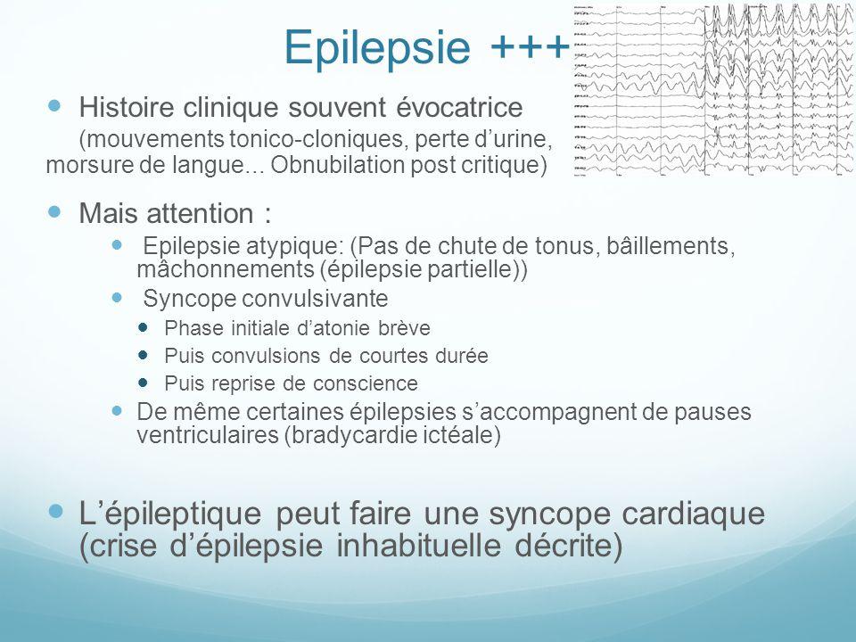 Epilepsie +++ Histoire clinique souvent évocatrice (mouvements tonico-cloniques, perte d'urine, morsure de langue... Obnubilation post critique) Mais