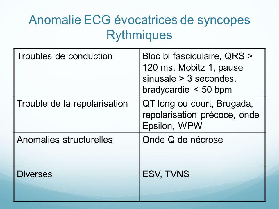 Anomalie ECG évocatrices de syncopes Rythmiques Troubles de conductionBloc bi fasciculaire, QRS > 120 ms, Mobitz 1, pause sinusale > 3 secondes, bradycardie < 50 bpm Trouble de la repolarisationQT long ou court, Brugada, repolarisation précoce, onde Epsilon, WPW Anomalies structurellesOnde Q de nécrose DiversesESV, TVNS