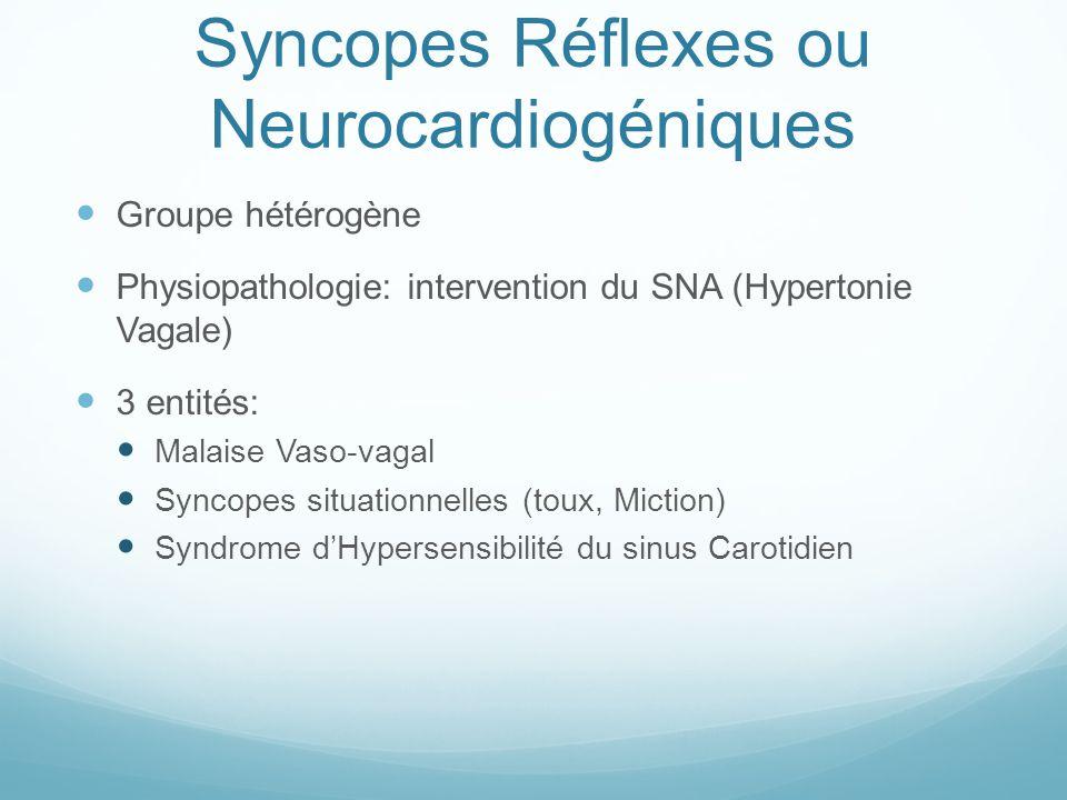 Syncopes Réflexes ou Neurocardiogéniques Groupe hétérogène Physiopathologie: intervention du SNA (Hypertonie Vagale) 3 entités: Malaise Vaso-vagal Syn