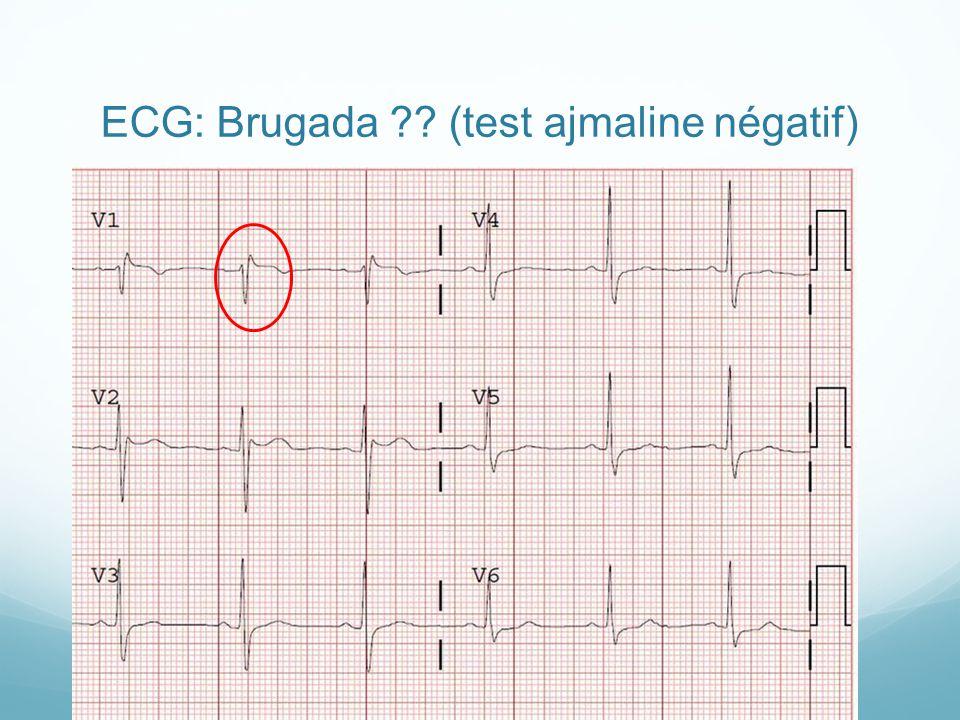 ECG: Brugada ?? (test ajmaline négatif)