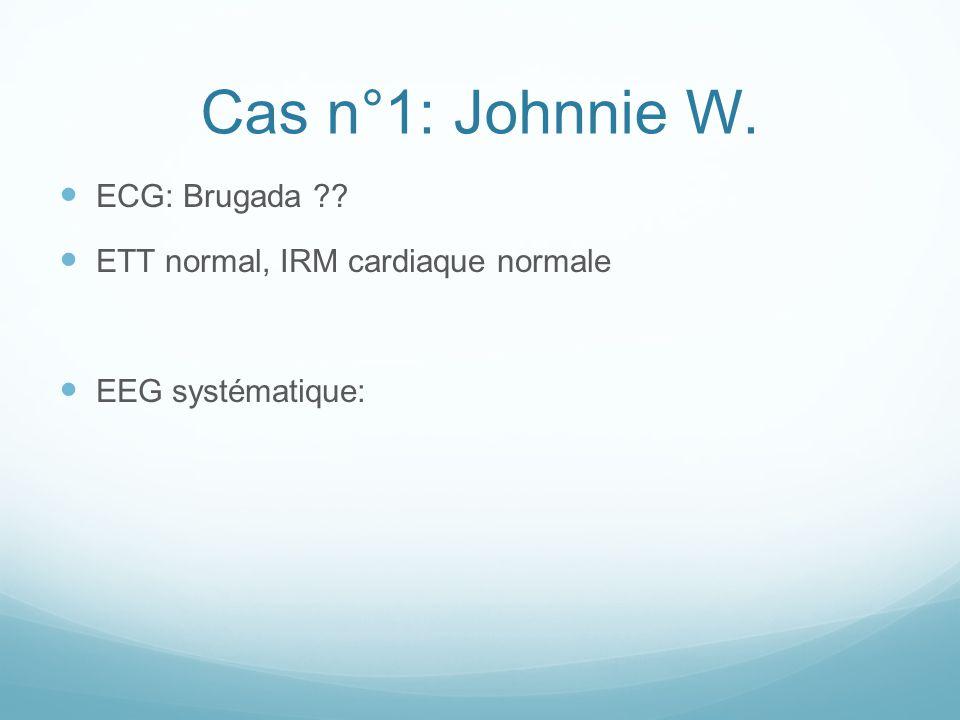 Cas n°1: Johnnie W. ECG: Brugada ?? ETT normal, IRM cardiaque normale EEG systématique: