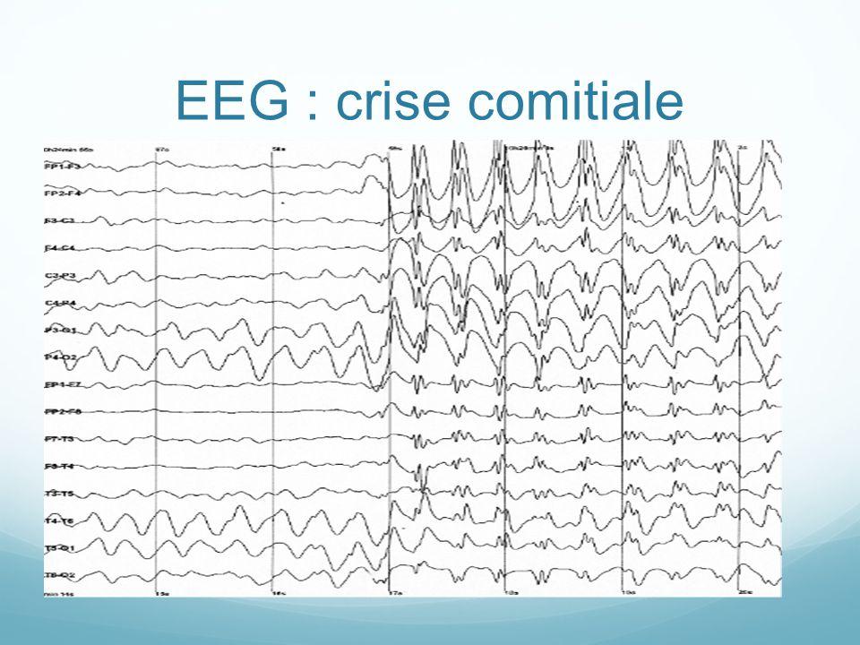 EEG : crise comitiale