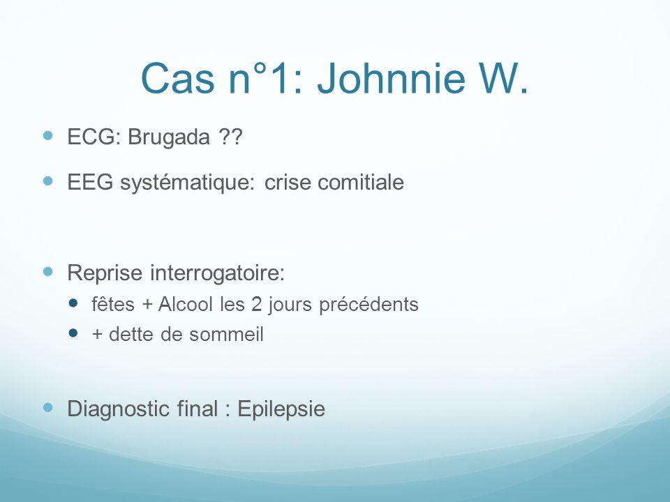 Cas n°1: Johnnie W. ECG: Brugada ?? EEG systématique: crise comitiale Reprise interrogatoire: fêtes + Alcool les 2 jours précédents + dette de sommeil