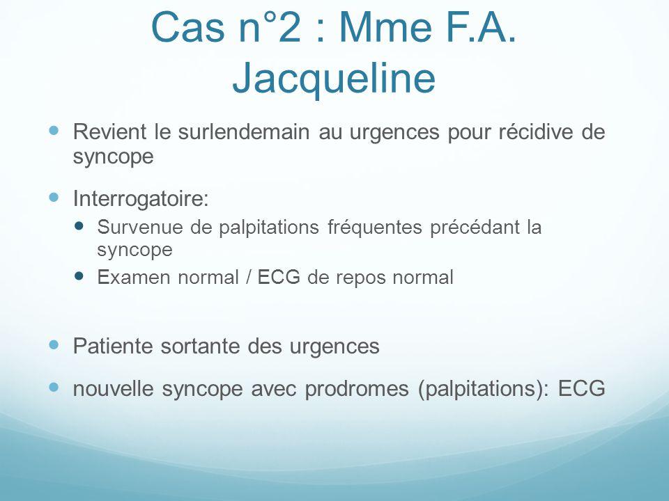 Cas n°2 : Mme F.A. Jacqueline Revient le surlendemain au urgences pour récidive de syncope Interrogatoire: Survenue de palpitations fréquentes précéda