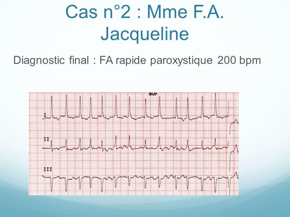 Cas n°2 : Mme F.A. Jacqueline Diagnostic final : FA rapide paroxystique 200 bpm