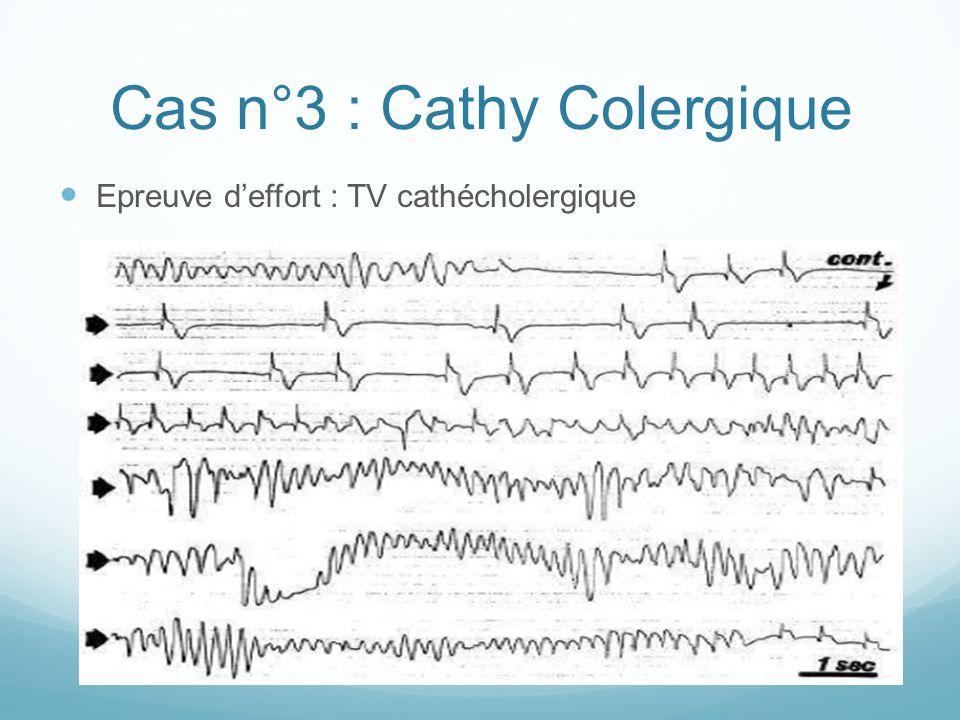 Cas n°3 : Cathy Colergique Epreuve d'effort : TV cathécholergique