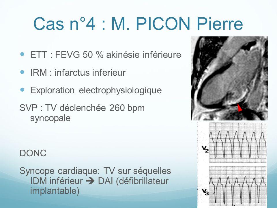 Cas n°4 : M. PICON Pierre ETT : FEVG 50 % akinésie inférieure IRM : infarctus inferieur Exploration electrophysiologique SVP : TV déclenchée 260 bpm s