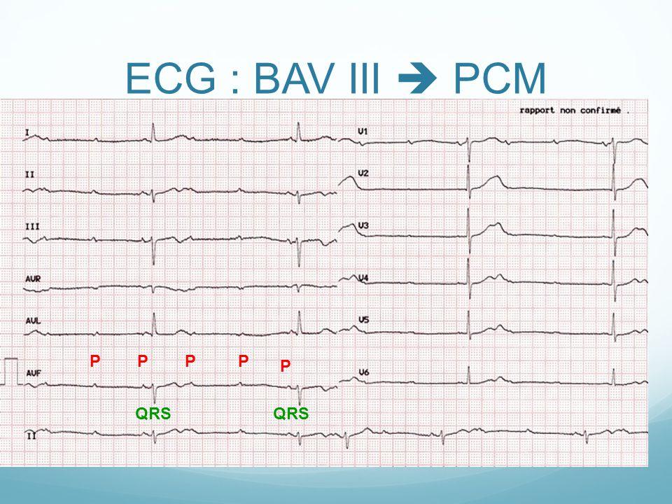ECG : BAV III  PCM PPP P P QRS