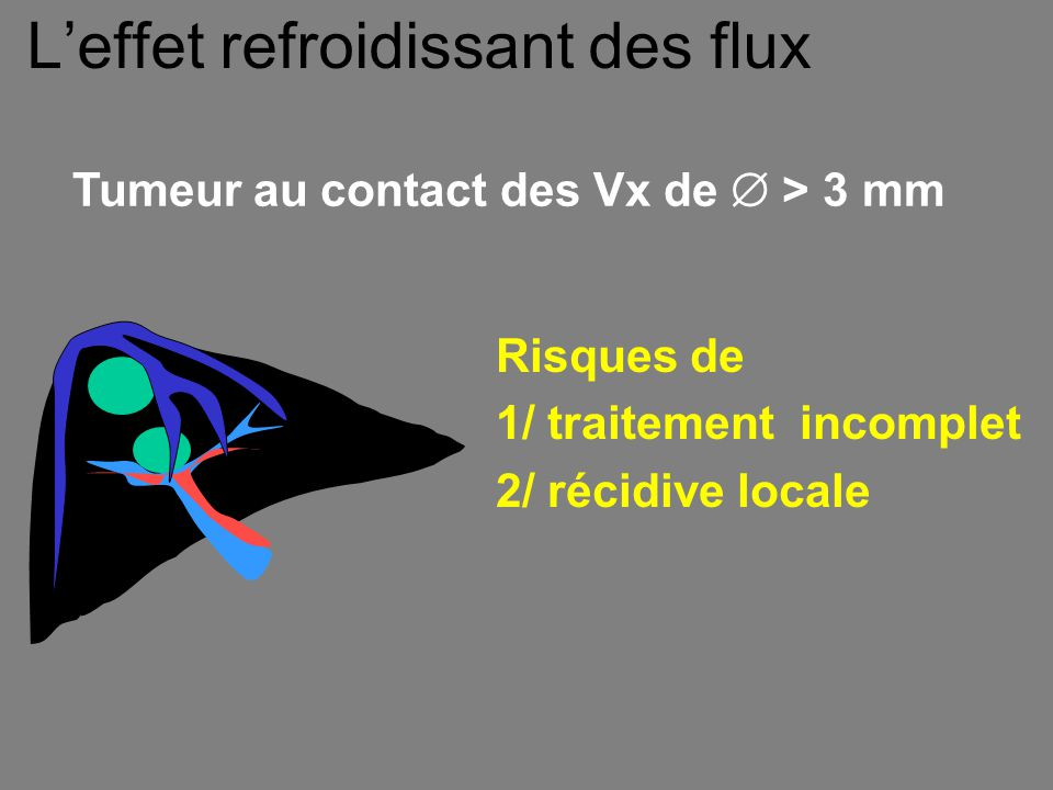 Tumeur au contact des Vx de  > 3 mm L'effet refroidissant des flux Risques de 1/ traitement incomplet 2/ récidive locale