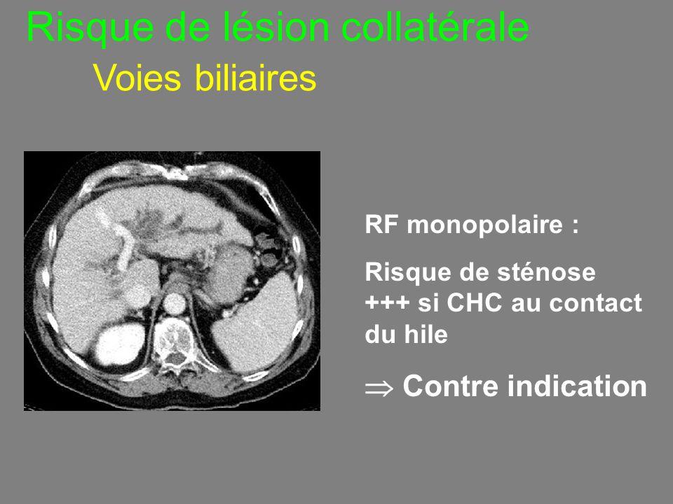 Risque de lésion collatérale Voies biliaires RF monopolaire : Risque de sténose +++ si CHC au contact du hile  Contre indication