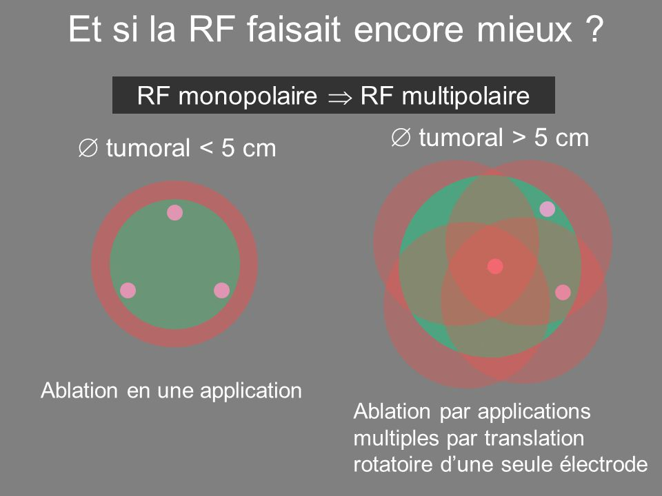 3 cm max  tumoral > 5 cm Ablation par applications multiples par translation rotatoire d'une seule électrode  tumoral < 5 cm Et si la RF faisait encore mieux .
