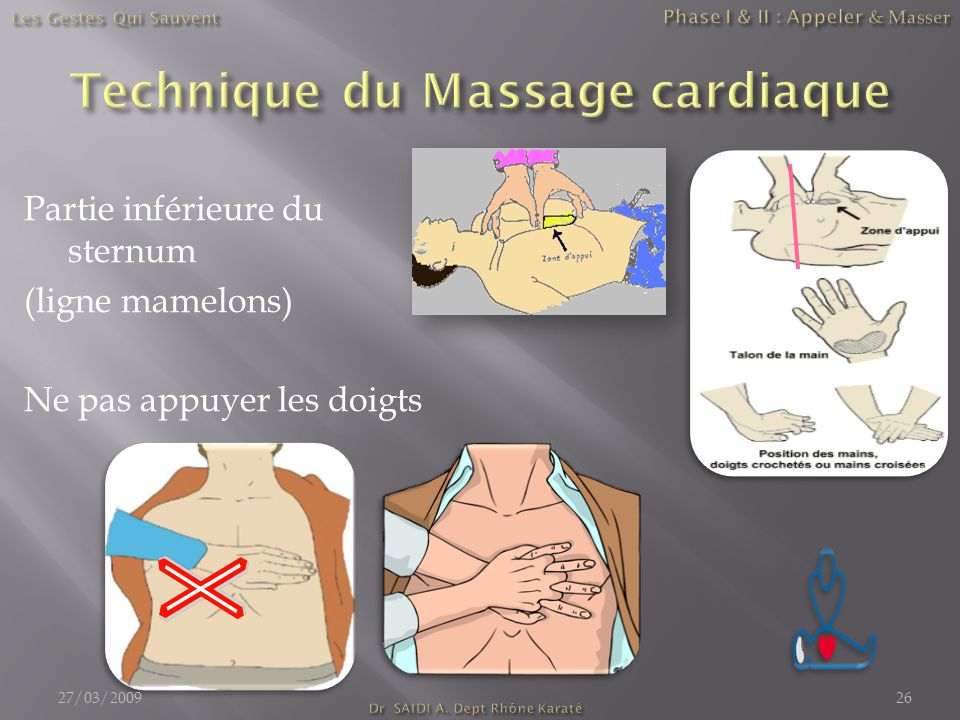 Partie inférieure du sternum (ligne mamelons) Ne pas appuyer les doigts 27/03/200926