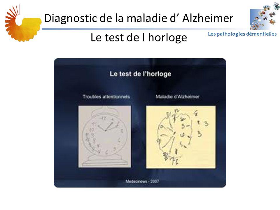A1 Les pathologies démentielles Diagnostic de la maladie d' Alzheimer Le test de l horloge