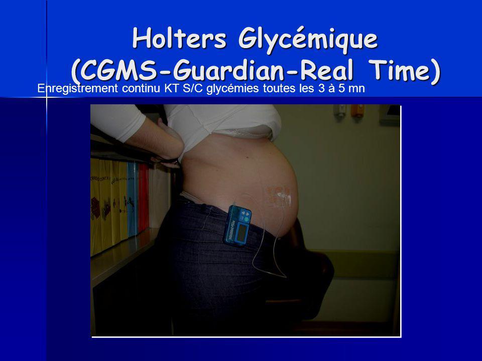 Holters Glycémique (CGMS-Guardian-Real Time) Enregistrement continu KT S/C glycémies toutes les 3 à 5 mn