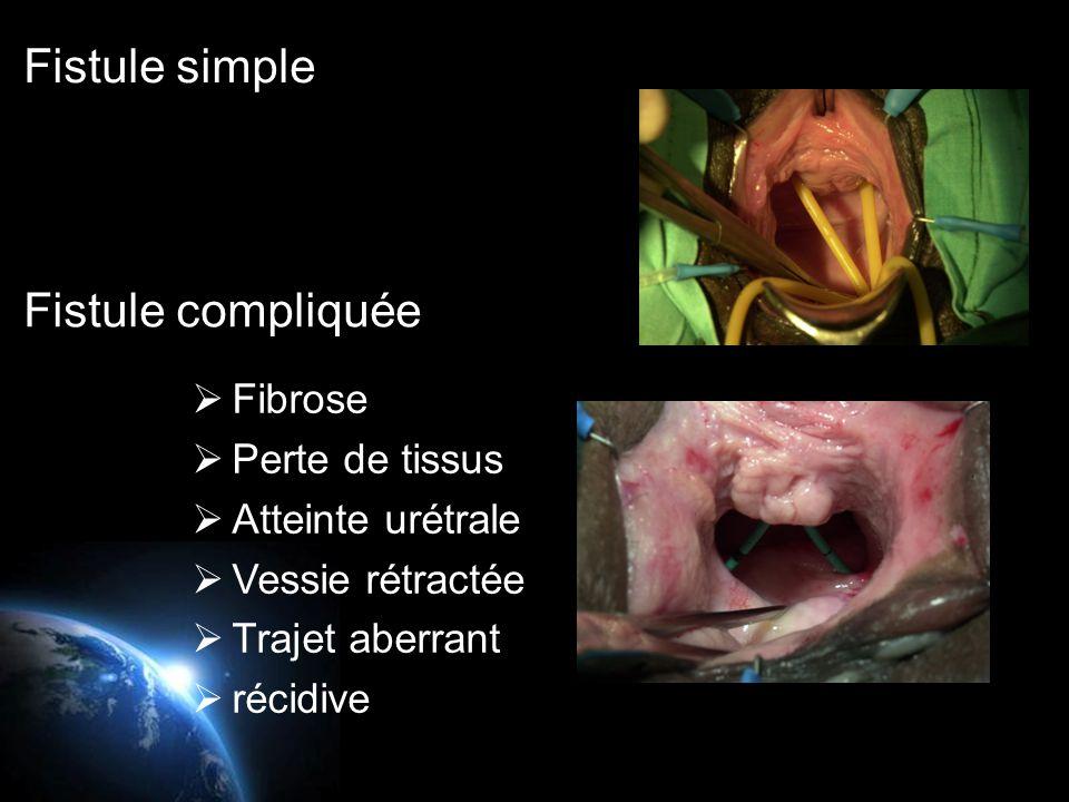  Tissus souple  Accès facile  Fibrose  Perte de tissus  Atteinte urétrale  Vessie rétractée  Trajet aberrant  récidive Fistule simple Fistule