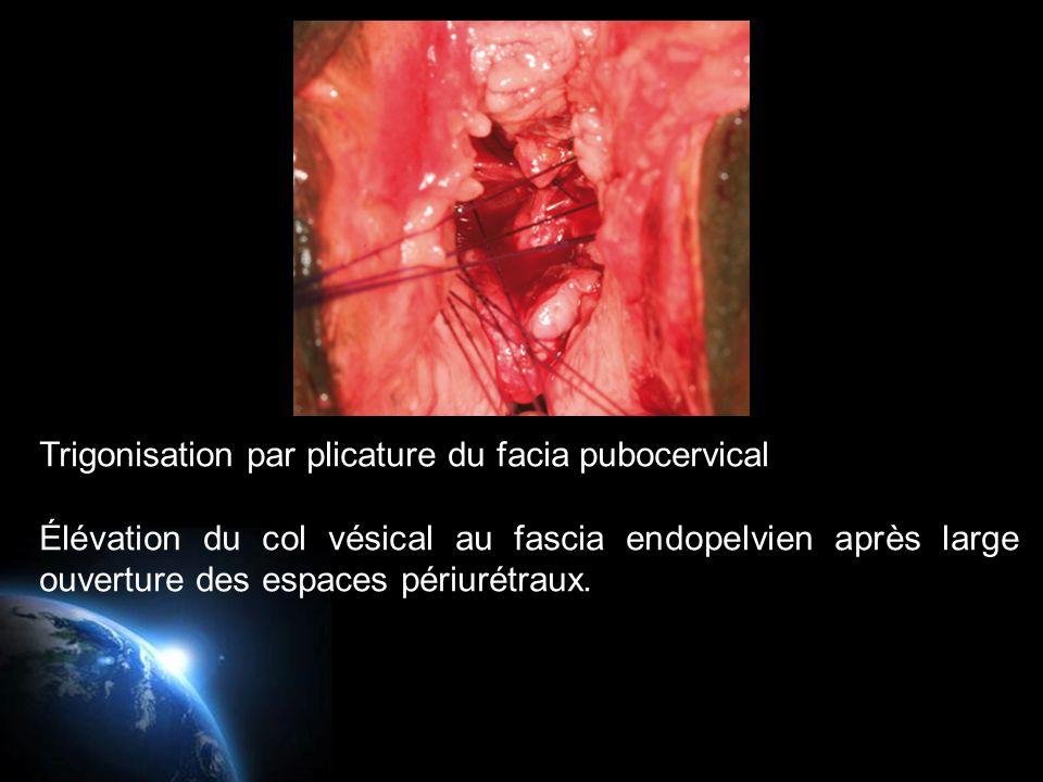 Trigonisation par plicature du facia pubocervical Élévation du col vésical au fascia endopelvien après large ouverture des espaces périurétraux.